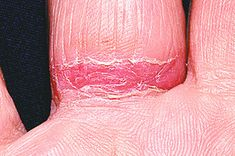 1000 Images About Nickel Free Knowledge On Pinterest Allergies Contact Dermatitis And Food