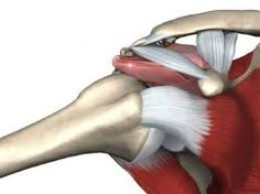 Found out yesterday this is the reason for my shoulder pain - shoulder bursitis impingement syndrome.i may have washed one too many dishes and raised one too many kids. Shoulder Impingement Surgery, Bursitis Shoulder, Shoulder Injuries, Shoulder Surgery, Shoulder Bone Spur, Shoulder Joint, Shoulder Rehab, Rotator Cuff Tear Treatment, Shoulder Blade Muscles