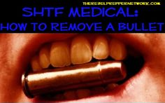 Entry of the top 90 most important prepping articles is a cure for lead poisoning SHTF Medical: How to Remove a Bullet Camping Survival, Survival Prepping, Emergency Preparedness, Survival Skills, Emergency Care, Survival Knife, Survival Gear, Tactical Pen, Pill Bottles
