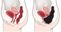 How to Remove 20 Pounds of Toxic Waste from Your Colon – ( RECIPE )! – Stay Healthy Magazine