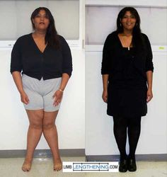 B6 and b12 vitamins for weight loss photo 3