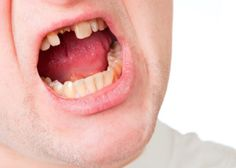 #Teeth can be lost due to injuries, decay, or #dental extractions. In any case, it's important to replace them as further damage can be done to your #oral health otherwise! Learn more at our website, www.sanadental.ca
