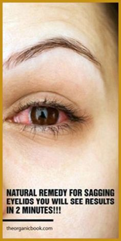 Natural Remedy for Sagging Eyelids You Will See Results In 2 Minutes! - Organic Remedies Tips Health Guru, Gut Health, Health And Wellbeing, Health And Nutrition, Nutrition Tips, Holistic Remedies, Holistic Healing, Natural Healing, Natural Remedies