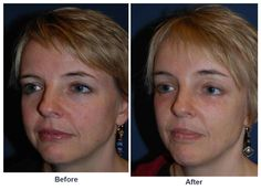 Sean Freeman, Charlotte's best facial plastic surgeon does soof lift blepharoplasty. Endoscopic Brow Lift, Eyelid Surgery, Plastic Surgery, Brows, Anatomy, Improve Yourself, Facial, Eyes, Posts