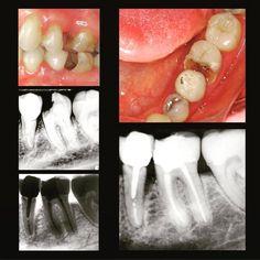 #Repost @drjcrespo  #Endodontics #Endodoncia #RootCanal #Endodontia #Endo #Root #Dentistry #Odontologia #Dentist #EndoLovers #Odontolovers Paciente con pulpitis irreversible asintomática en el 36 tratado en una visita. Programada repetición de tratamiento en el 35. by alldental Our Root Canals Page: http://www.myimagedental.com/services/general-dentistry/root-canals/ Other General Dentistry services we offer: http://www.myimagedental.com/services/general-dentistry/ Google My Business…