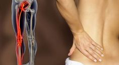 Is your Sacroiliac Joint causing lower back pains? Sacroiliac Joint Fusion is a minimally invasive surgical SI joint dysfunction treatment option for you. Sciatic Pain, Sciatic Nerve, Nerve Pain, Si Joint, Back Pain Exercises, Beauty Tips For Women, Back Pain Relief, Low Back Pain, Arm Workouts