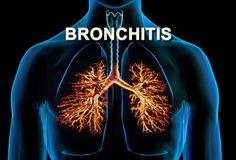 These natural home remedies for bronchitis will provide relief and help decrease the inflammation of your bronchial tubes. #health #healthcare #healthyliving #healthylifestyle #naturalremedies #homeremedies