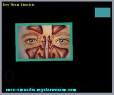 Sore Throat Sinusitis 140723 - Cure Sinusitis