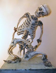 Skeleton with Von Recklinghausen's disease of the bone