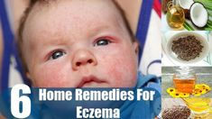 Home Remedies for Eczema in Children Watching your child suffer the constant itch and irritation of baby eczema can be really frustrating! Eczema is a linger. Home Remedies For Eczema, Natural Remedies, Mind Blown, Children, Youtube, Food, Young Children, Boys, Kids