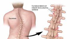 Lo que debes conocer de la escoliosis, si la columna vertebral de tu hijo parece estar curvada - http://plenilunia.com/prevencion/lo-que-debes-conocer-de-la-escoliosis-si-la-columna-vertebral-de-tu-hijo-parece-estar-curvada/42544/