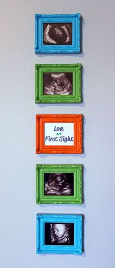 A great way to display all those sonogram pictures!
