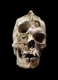 Adult human skull with severe craniofacial deformity.