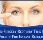 Magical Makeup Tips You Can Apply On Droopy Eyelids Eyelid Surgery Recovery TipsEyelid Surgery Recovery Tips Droopy Eyelids, Eyelid Surgery, Magical Makeup, Surgery Recovery, Eye Lift, Makeup Tips, Restoration, How To Apply, Make Up