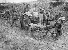 Battle of Bazentin Ridge: Wounded man on a wheeled stretcher near Bernafay Wood, 19 July 1916