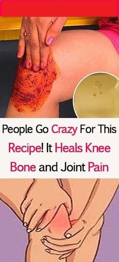 Go Crazy For This Recipe! It Heals Knee, Bone and Joint Pain People Go Crazy For This Recipe! It Heals Knee, Bone and Joint Pain People Go Crazy For This Recipe! It Heals Knee, Bone and Joint Pain Health Remedies, Home Remedies, Natural Remedies, Herbal Remedies, Arthritis Remedies, Holistic Remedies, Holistic Healing, Arthritis Diet, Rheumatoid Arthritis