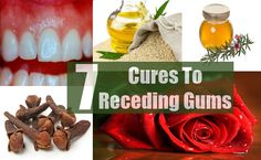 The problem of receding gums is also referred to as 'Gingival Recession''. It is frequently found in people over the age of 40 years. It is caused by factors such as aggressive brushing, bacterial build up, consumption of tobacco and improper oral hygiene.It may result in red or inflamed gums, pain, change in teeth colour, sensitive teeth, gum bleeding, bad breath and so on. Various natural cures to treat this problem are mentioned below. Natural Cures for Receding Gums Sage Sage is also…