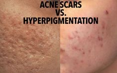 The 5 Kinds of Acne Scars & How To Treat Each Type - The Pretty Pimple - Hormonal Acne Face Wash - Pinword Acne Treatment At Home, Cystic Acne Treatment, Natural Acne Treatment, Scar Treatment, Acne Treatments, Cystic Acne Remedies, Natural Acne Remedies, Acne Face Wash, Top