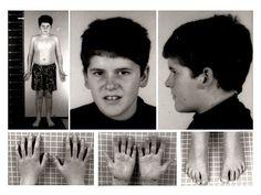 Prader–Willi syndrome - Wikipedia, the free encyclopedia