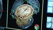 Mysteries of the Brain.  Free video from NBC Learn.