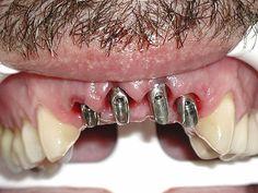 Dental Implants by Alvaro...