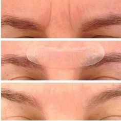 Redefine Acute Care before and after images.