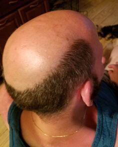 Male Pattern Baldness, Bald Men, Moustache, Hair Loss, Shaving, Mustache, Losing Hair, Hair Falling Out, Moustaches