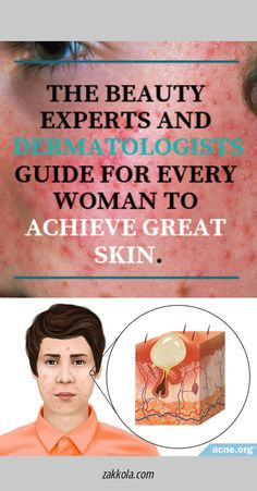 Learn about acne.  Please click here to read more Acne Remedies, Acne Treatment, Learning, Beauty, Beleza, Cosmetology, Teaching, Studying