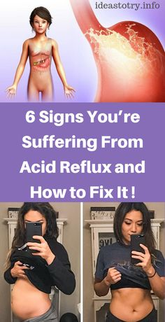 6 Signs You're Suffering From Acid Reflux and How to Fix It ! - Page 7 of 7 - Your Health Leiden, Flat Lay Fotografie, Ibiza, Endocannabinoid System, Summer Dress, Little Presents, Outfit Trends, Yoga Photography, Inbound Marketing