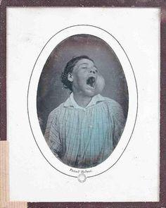 Adjugé 26 000 euros par Goxe & Belaïsch à Enghien-les-Bains le 12 juin 2014 -  Louis-Auguste BISSON (1814-1876). Homme à la joue gonflée (de face, bouche ouverte). Août 1855. Daguerréotype 1/4 de plaque. Présentation sous passe-partout ovalisé d'époque. Signature du photographe par un timbre sec en creux « LAB » dans un double cercle et mention « Portrait redressé » sur le passe-partout, en dessous du sujet.