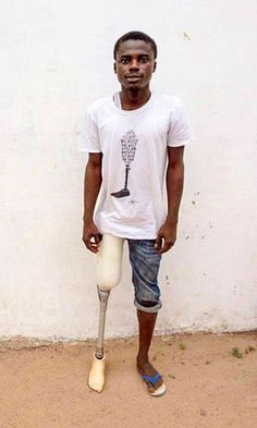 Mohamad Musa had his leg removed in 2014 after suffering pain for many years.
