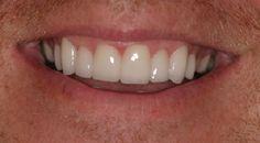 veneers :  http://www.rankipedia.com/dentist/dentistprofile/Dr-Dr--Ronald-E--Rosenblatt-DDS-FAAID-FICOI-FIAO-Beverly-Hills/90210/id/125688