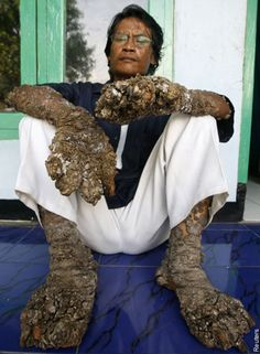 Dede, from Indonesia's West Java province, suffers from a condition where huge growths appear on his hands and feet. In April, Dede had 95 percent of the growths removed, but they have since re-grown Funny Weird Facts, Weird But True, Human Oddities, Weird News, Bizarre, Unusual Things, Human Condition, Crazy People, Weird World