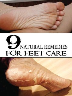 9 Natural Remedies for Feet Care