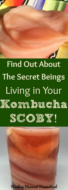 Have you ever wondered what bacteria and yeasts are living in your kombucha SCOBY? Find out everything you ever wanted to know about these little creatures that make up that slimy blob called your SCOBY and are needed to create healthy, tasty kombucha tea!