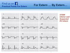 STEMI inferior wall. Suspected RV infarct