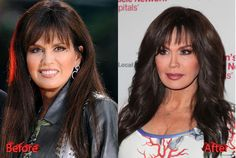 Marie Osmond Before And After 36028   RAMWEB