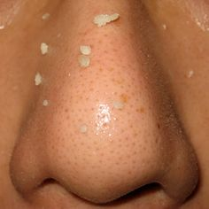 How to: Remove Nose Blackheads Naturally