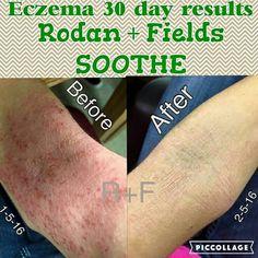 Amazing results with Rodan + Fields SOOTHE for eczema! #sootheyourskin #changingskinchanginglives #rfjourney Heather@InMyNewSkin.com hmisenheimer.myrandf.com