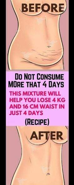 Diet Plan for Hypothyroidism - Do Not Consume It More Than 4 Days: This Mixture Will Help You Lose 4 KG And 16 CM Waist In Just 4 Days – Recipe ! Diet Plan for Hypothyroidism - Thyrotropin levels and risk of fatal coronary heart disease: the HUNT study. Fitness Workouts, Fitness Motivation, Fitness Weightloss, Workout Routines, Health And Beauty, Health And Wellness, Health Fitness, Health Club, Weight Loss Drinks