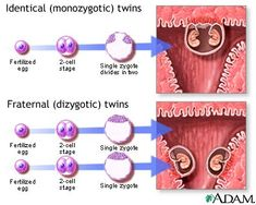 An overview of the types of twins: identical (monozygotic), fraternal (dizygotic), with the incidence, genetics, and possible health risks. Twin Girls, Twin Babies, Types Of Twins, Nouveaux Parents, Multiple Births, Fraternal Twins, Identical Twins, Pre Pregnancy, How To Have Twins