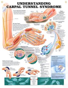 Understanding Carpal Tunnel Syndrome anatomy poster defines Carpal Tunnel Syndrome (CTS) and nerve compression syndrome.