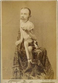 Johnathan R. Bass The Ossified Man cabinet card (1890)