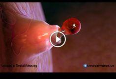 fertility Medical Sites, Fertility