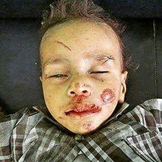 #حجة : الحمدلله مازال هذا الطفل علي قيد الحياة  بعد ان قام طيران #العدوان_السعودي بقصف أسرته بكاملها في منطقة جياح عقب صلاة عيد الأضحى حيث نجا بمفردة بلاعينين ويتم علاجة الان في مستشفى الثورة  #اليمن #السعودية #yemen #اليمن_مقبرة_الغزاة #قرن_الشيطان_سينكسر