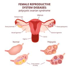 Miracle Treatment for Polycystic Ovary Syndrome (PCOS) -- Want to cure your polycystic ovarian syndrome for good? Here's 9 natural treatments you definitely must consider...