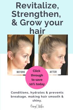 Want to make your hair faster and increase thickness?  Nutriol shampoo for hair growth is one of the best products with amazing results.  Repin & click through to save 10% off your order today.    #NuSkin #growhairfaster #beforeandafter #thickness #shampooforhairgrowth Nutriol Shampoo, Hair Growth Shampoo, Nu Skin, Smooth Hair, How To Make Hair, Anti Aging Skin Care, Beauty Products, Conditioner, Hair Beauty