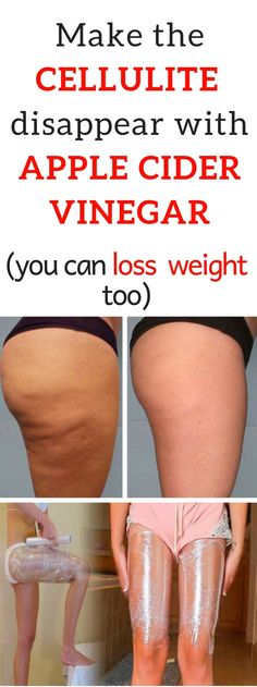 Make The Cellulite Disappear And Lose Weight With Apple Cider Vinegar! Carole Lewis Permanent Cellulite Removal Make The Cellulite Disappear And Lose Weight With Apple Cider Vinegar! Causes Of Cellulite, Cellulite Wrap, Cellulite Exercises, Cellulite Remedies, Reduce Cellulite, Anti Cellulite, Cellulite Workout, Back Acne Treatment, Cellulite