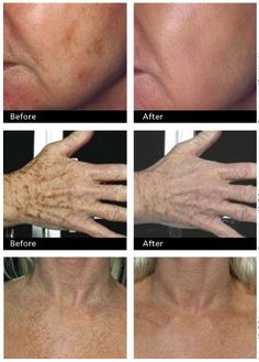 age-spots1 How To Get Rid Of Age Spots