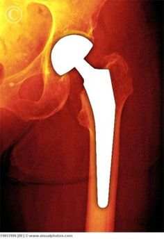 Total Hip Replacement Surgery: A Survivor's Guide